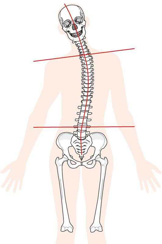 坐骨神経痛への当院でのアプローチ